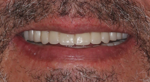 Dentures 1 | Scottsdale Cosmetic and Implant Dentist | Scottsdale Esthetic & Implant Dentistry