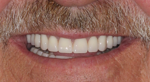 Dentures 2 | Scottsdale Cosmetic and Implant Dentist | Scottsdale Esthetic & Implant Dentistry