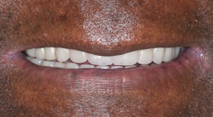 Dentures 3 | Scottsdale Cosmetic and Implant Dentist | Scottsdale Esthetic & Implant Dentistry