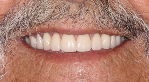 Dentures 4 | Scottsdale Cosmetic and Implant Dentist | Scottsdale Esthetic & Implant Dentistry