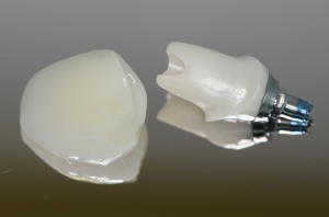 A Dental Implant and Crown | Scottsdale Cosmetic and Implant Dentist | Scottsdale Esthetic & Implant Dentistry