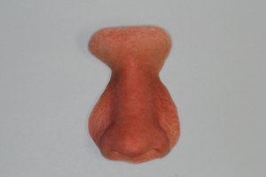 Nasal Prosthesis - Replaces Nose   Scottsdale Cosmetic and Implant Dentist   Scottsdale Esthetic & Implant Dentistry