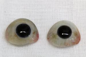 Ocular Prosthesis - Replaces Eye   Scottsdale Cosmetic and Implant Dentist   Scottsdale Esthetic & Implant Dentistry
