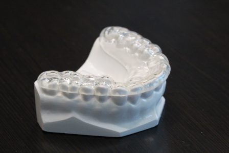 Invisalign on Fake Teeth | Scottsdale Cosmetic and Implant Dentist | Scottsdale Esthetic & Implant Dentistry