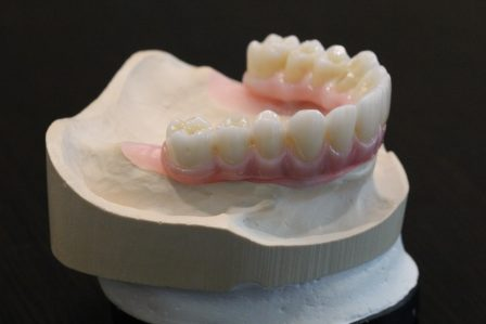 Dentures show case | Scottsdale Cosmetic and Implant Dentist | Scottsdale Esthetic & Implant Dentistry