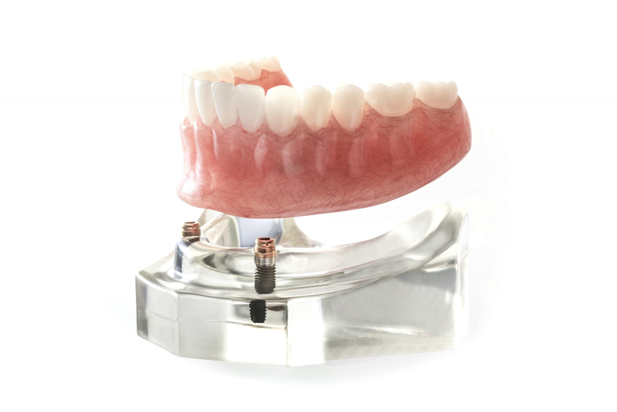 Implant dentures sitting on a display | Scottsdale Denture Specialist